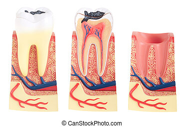 Tooth anatomy - tooth anatomy collection (vital tooth, ...