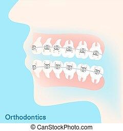 tooth brace concept - cute cartoon tooth brace concept on...