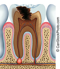 Tooth caries - Cavity of a tooth in its advanced