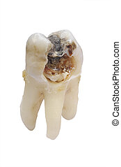 tooth caries - tooth with dental caries