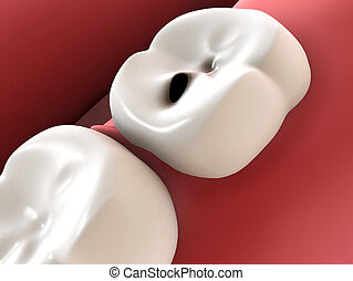 tooth cavities - 3d rendered illustration of a human tooth...