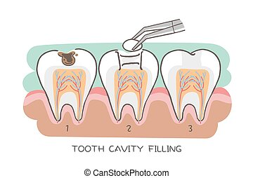 tooth cavity filling