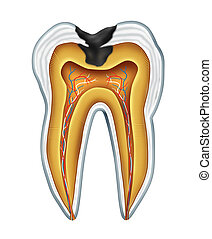 Tooth cavites symbol showing the medical cross section anatomy of teeth with a cavity in decay due to poor bacteria and acids in oral health care and lack of brushing and flosing and visiting the dentist for oral disease prevention.
