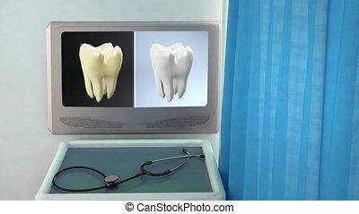 tooth contrast screen closeup