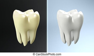 tooth contrast - The health of tooth and bad tooth...