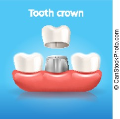 Tooth Crown Realistic Vector Dental Poster
