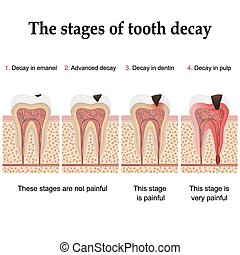Tooth decay formation step by step, forming dental plaque...