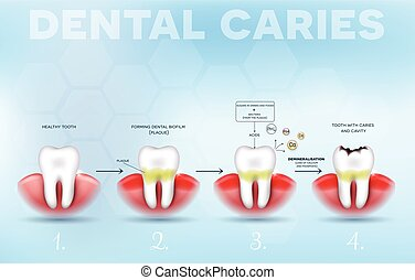 Tooth decay formation poster