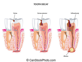 tooth decay - medical illustration of the dental caries ...