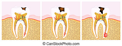 tooth decay scheme
