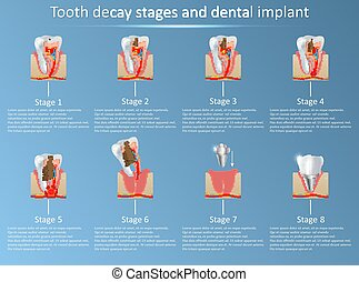 Tooth decay stages and dental implant vector illustration -...