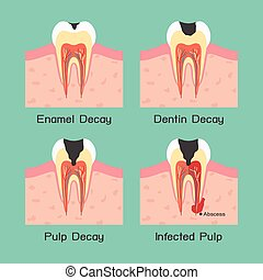 Tooth decay, vector