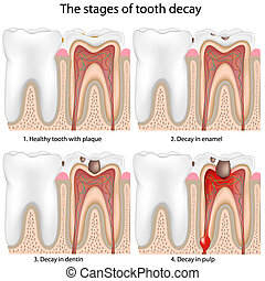 Tooth decay - Stages of Tooth decay, eps8