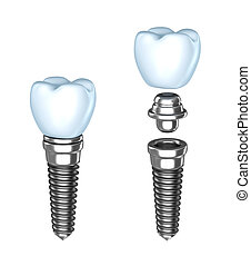 Tooth implant. assembled and disassembled. Isolated on...