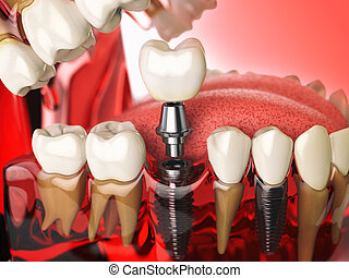 Tooth implant in the model human teeth, gums and denturas. Dental medicine stomatology concept.