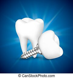 Tooth implant on a blue background.