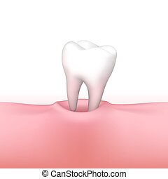Tooth loss on white background.