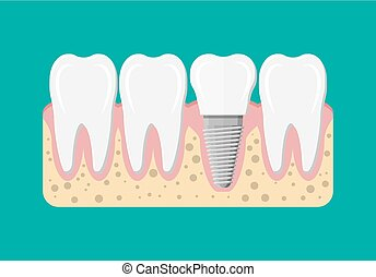 Tooth restoration. Dental implant. Dental prostheses. Artificial teeth with steel pin. Oral care, stomatology and dentistry. Vector illustration in flat style