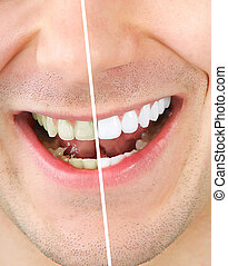 Tooth whitening - Male teeth before and after whitening