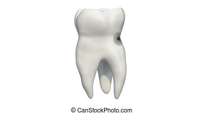 Tooth with caries, 3d animation. 3D rendering isolated on white background