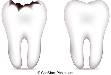 Tooth with caries and cavity and healthy tooth