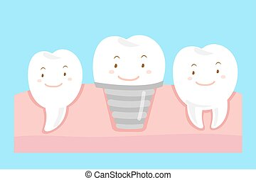 tooth with implant concept