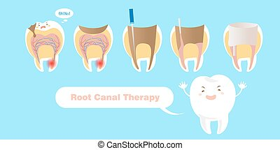 tooth with root canal therapy on the blue background