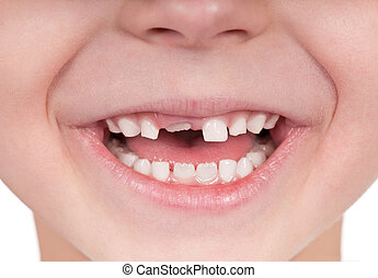 Toothless smile - Happy little girl or boy toothless smile...