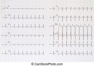 Top view of a complete electrocardiogram