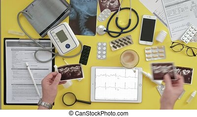 Top view of the therapist's desktop, ECG results on a...