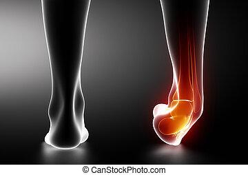 torcido, tornozelo, pretas, raio x