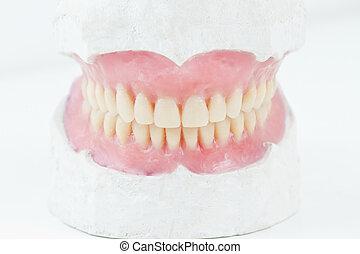 mock- up, for, denta, l total, prosthesis,