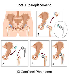 Total hip replacement, eps10 - Total hip replacement surgery...