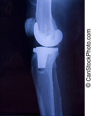 Total knee replacement x-ray side picture