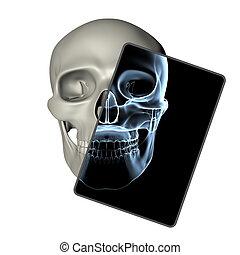 totenschädel, rahmen, -, menschliche , front, röntgenaufnahme, ansicht