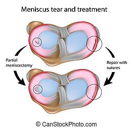 traan, chirurgie, eps8, meniscus