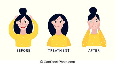 traitement, avant, isolated., acné, après, soin, visage femme, plat, vecteur, illustration