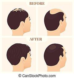 traitement, côté, femme, cheveux, homme, vue, après, perte, avant