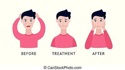 traitement, dessin animé, avant, homme, acné, après, style, ensemble, plat