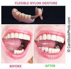 traitement, inférieur, après, dentaire, prothèse, rééducation, avant, supérieur