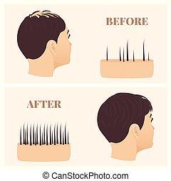 traitement, perte, après, cheveux, vue, avant, femme, côté
