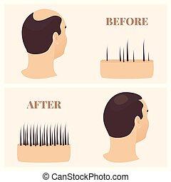 traitement, perte, après, cheveux, vue, avant, homme, côté