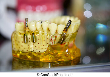 Transparent Model of Human Teeth