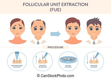 transplantation, infographic, cartaz, procedimento, cabelo, ...