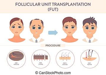 transplantation, infographic, fut, cartaz, procedimento, ...