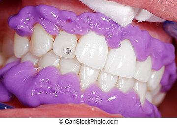 tratamento, dental