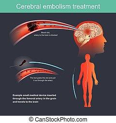 treatment., cérébral, embolie