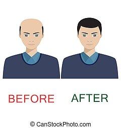 treatment., cabelo, antes de, após, homem
