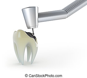Treatment of a tooth with caries