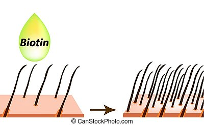 Treatment of alopecia. Vitamins hair. Biotin. Seborrhea skin...